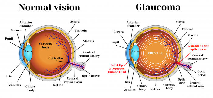 Diagram of an eye (normal vision vs. glaucoma)