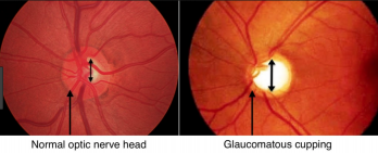 Image of what the doctor sees through the ophthalmoscope