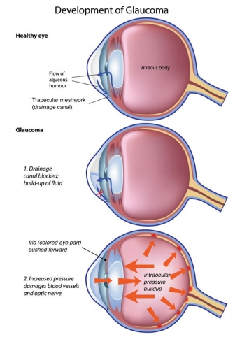 Image of the development of glaucoma and trabecular meshwork