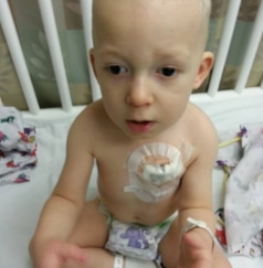 Young child with chemotherapy port in chest