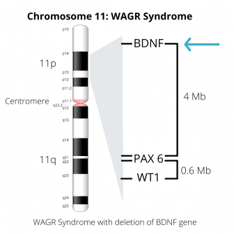 Image of Chromosome 11, including deletion of the BDNF gene